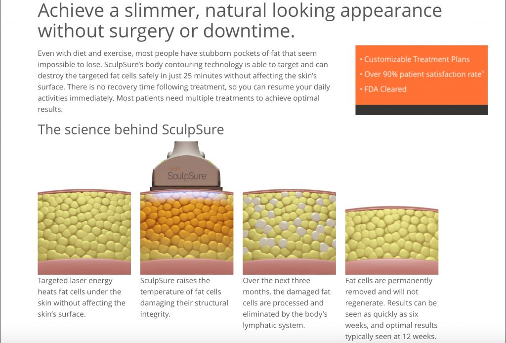 Photos along with an explanation of how SculpSure works.