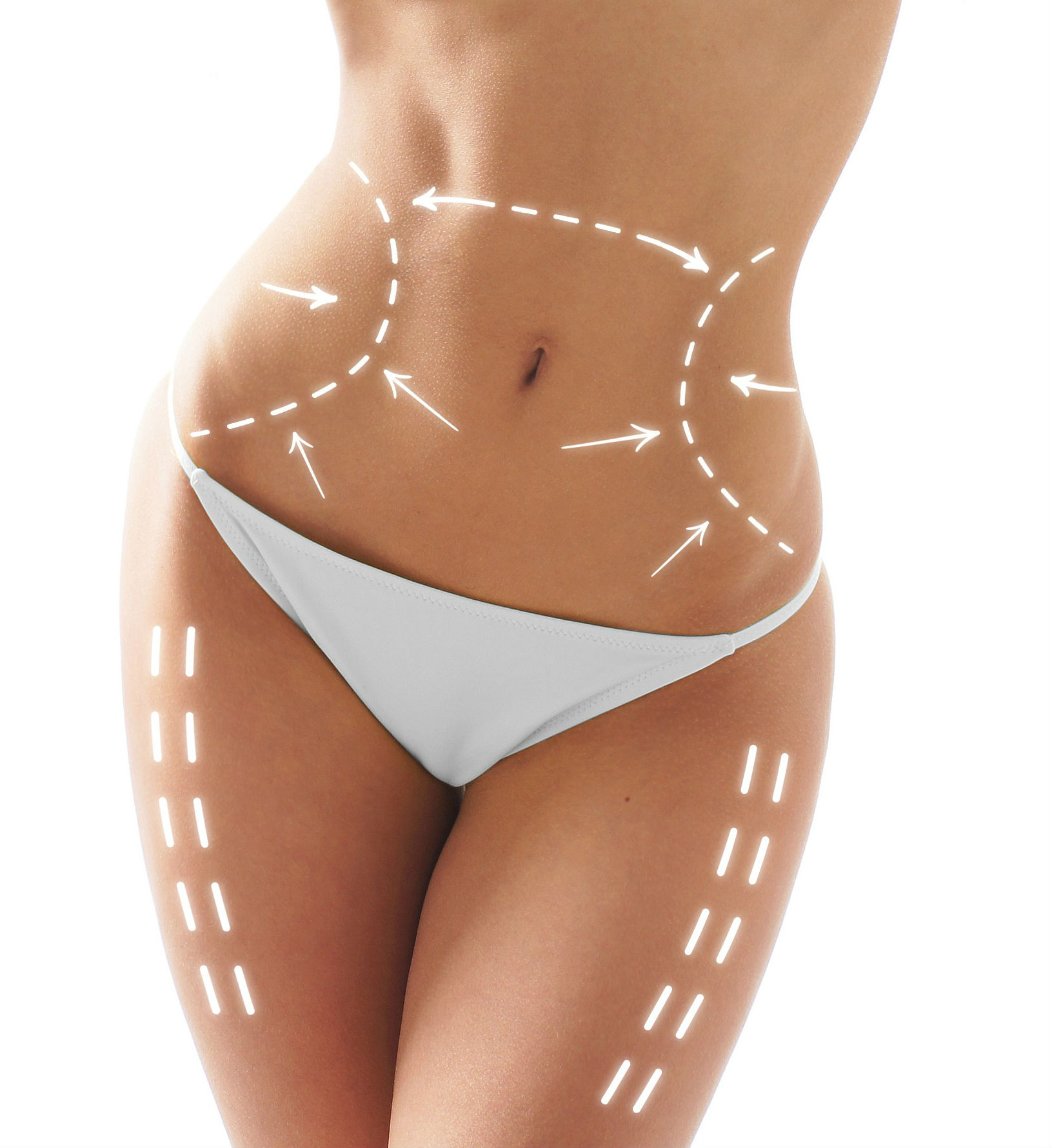 Woman in white bikini with markup showing where SculpSure will target fat.