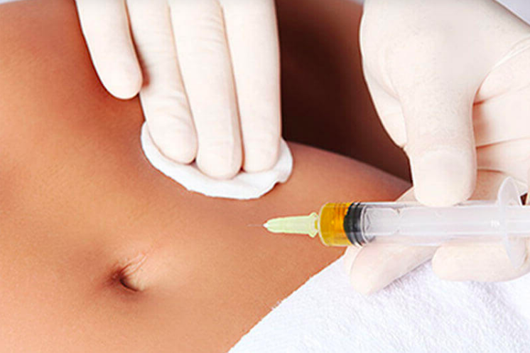 Close up image of female patient receiving a Sculptique Cosmetic injection near the belly button.